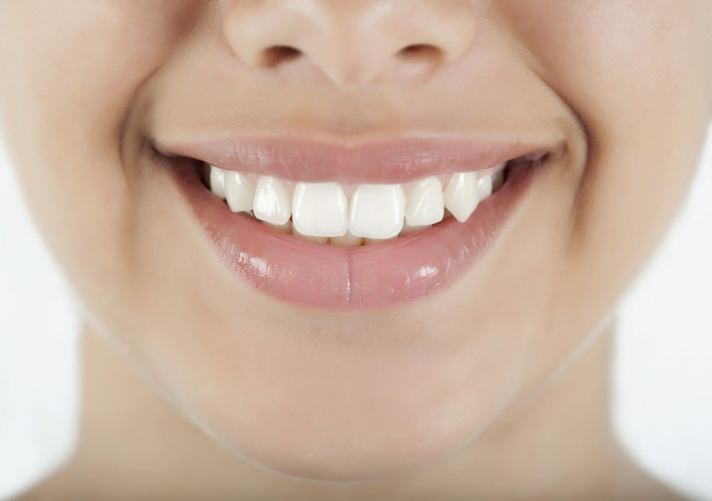Are Crooked Teeth Genetic?